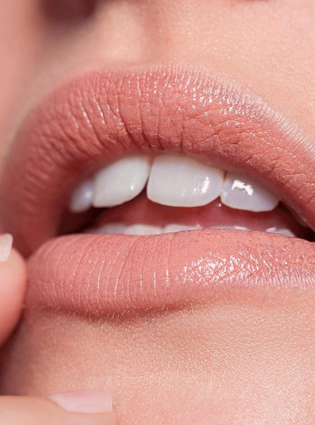 Lippe trockene stelle an der Rote Stelle